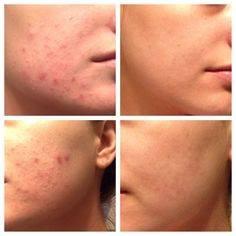 acne Skindeep beauty